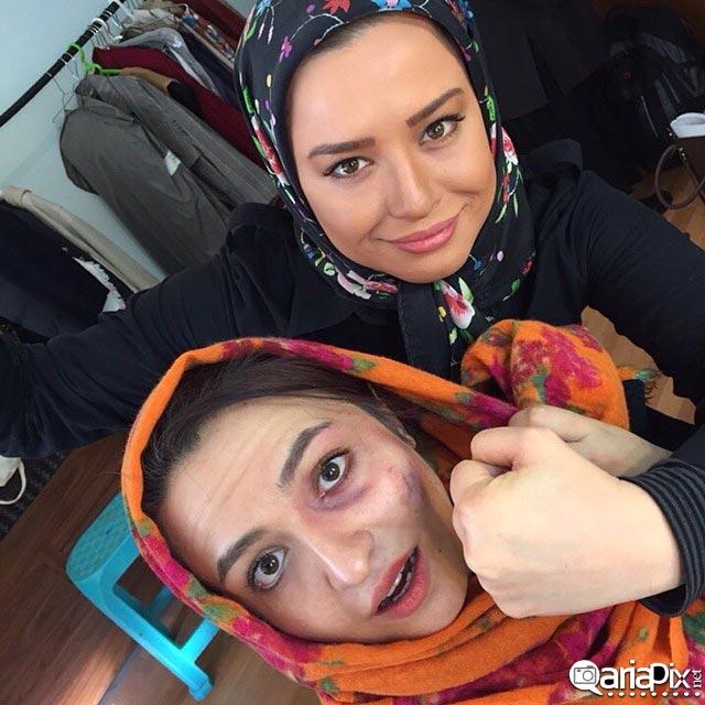 مهراوه شریفی نیا و کبودی چشم کتک گلاره عباسی