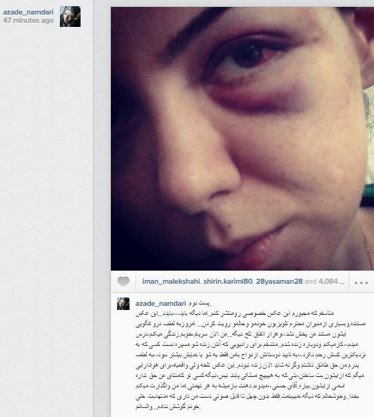 عکس کتک خورده و چشم کبود آزاده نامداری توسط فرزاد حسنی
